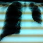 Röntgenbild des Herrn K.